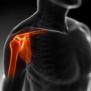 Artroscopia de Ombro
